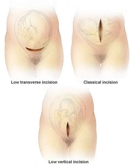 After Section by Low Transverse Uterine Allows A Birth