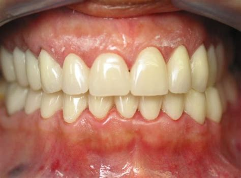 image gallery normal occlusion