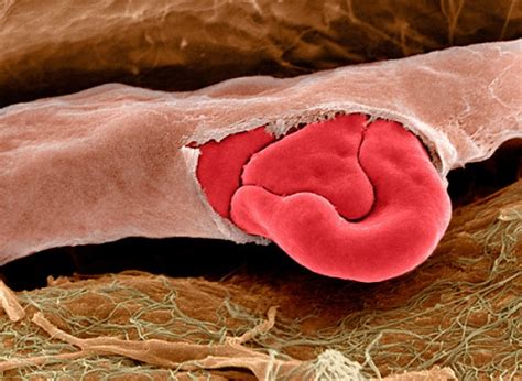 rottura vasi capillari rottura di un capillare al microscopio elettronico focus it