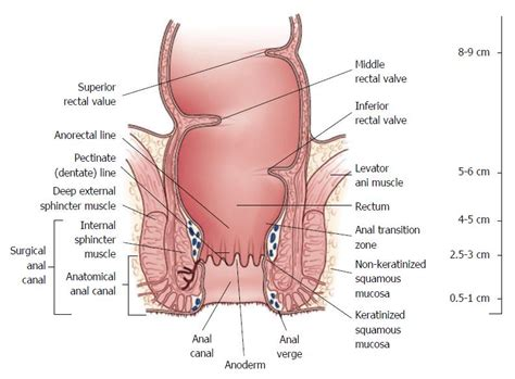 Oncology Cancer 4 In 1 C rectal cancer anatomy www pixshark images