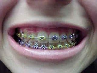 Alat Perapi Gigi Behel Merapikan Gigi Teeth Retainer Dewasa Diskon behel kawat gigi