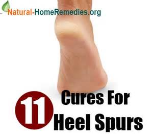 home remedies for heel spurs tips care remedies hairstyles