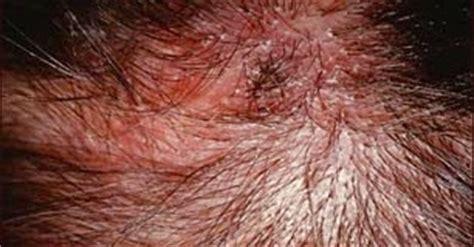 psoriasis cuero cabelludo la psoriasis y los remedios caseros para el cuero