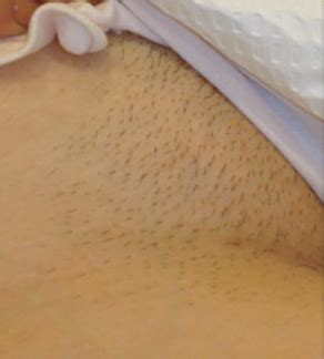 tattoo removal norwich line hair removal treatment in norwich the