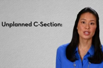 unplanned c section why you might need to have an unplanned c section today
