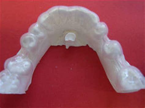 teeth whitening splint