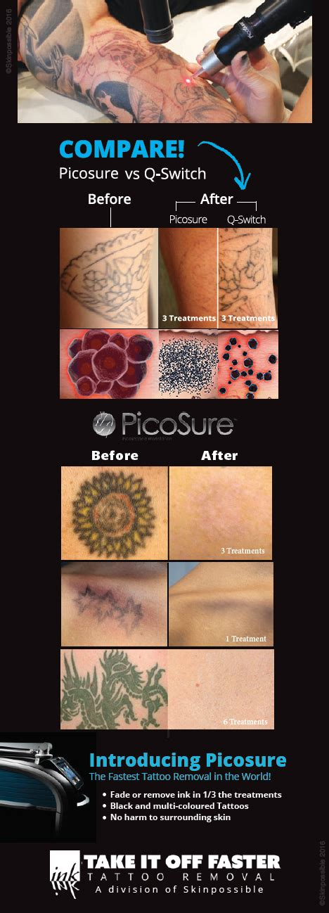 calgary tattoo removal regret skinpossible laser light calgary laser