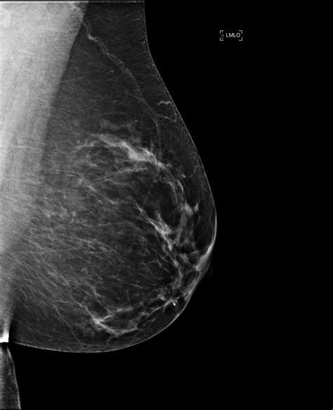 mammogram images pin normal mammogram images image search results on