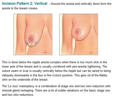 Breast Lift the periareolar incision lends itself to breast prosthesis implantation and to areola