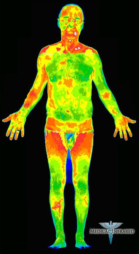 infrared thermal ayon sa nasusulat thermal infrared scan