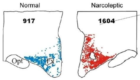 the narcoleptic new clue to cause of human narcolepsy sciencedaily