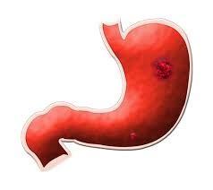 alimentazione ulcera duodenale ulcera gastrica duodenale ed esofagea ulcera peptica