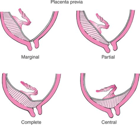 anterior placenta previa c section c section with placenta previa complications placenta