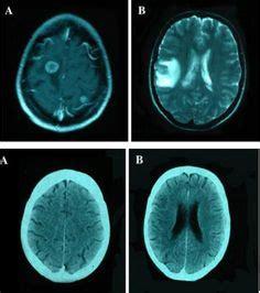 cerebral cavernous malformation ccm  cm  cavernous