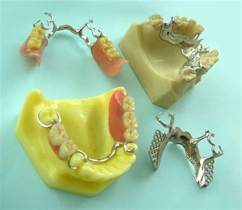 quanto costa una protesi dentaria mobile protesi fissa e mobile centro dentale specialistico
