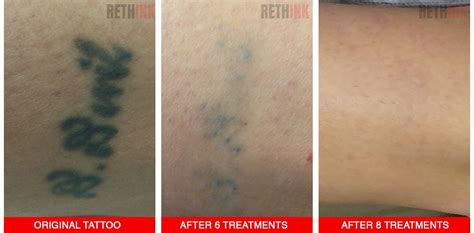 tattoo removal australia rethink laser removal photos