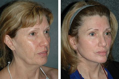 lower face and neck lift lower facelift facelift surgeon lower facelift and