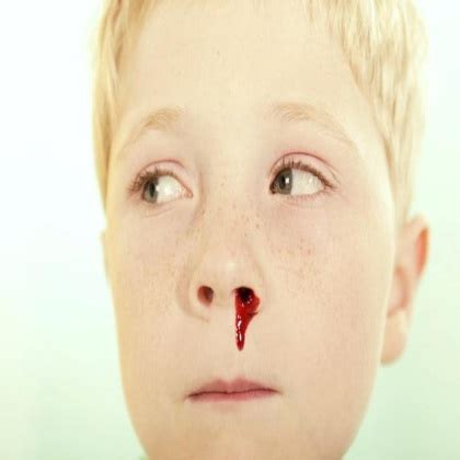 bloody nose 12 best home remedies for bloody noses in children treatments for bloody