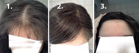 quemadura cuero cabelludo por tinte blog de alopecia femenina agosto 2013