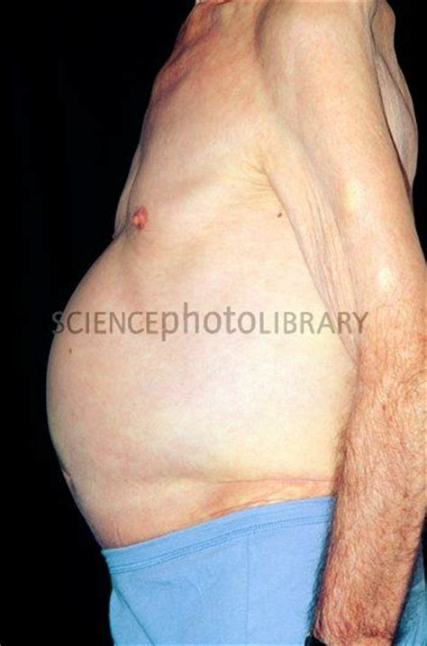 distended stomach ascites side view of a s distended abdomen stock image m108 0382 science