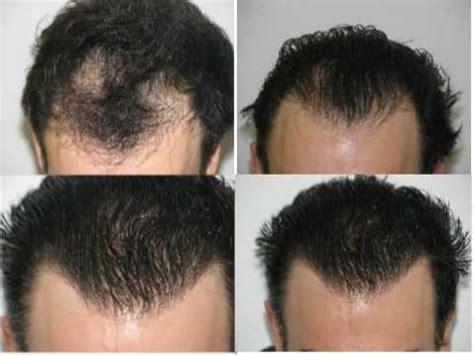 wann wachsen die haare nach einer haartransplantation www moderne haartransplantation dr mwamba 1800 grafts
