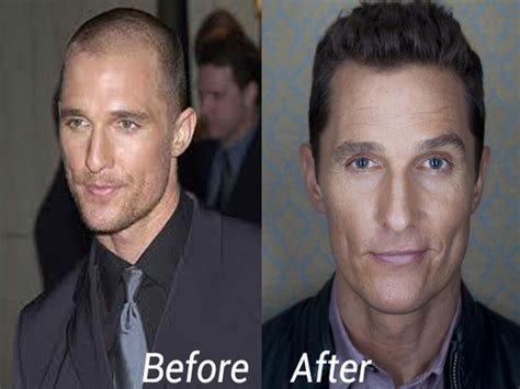 hair plug versus transplant celebrity celebrities who fought hair loss with hair transplantion
