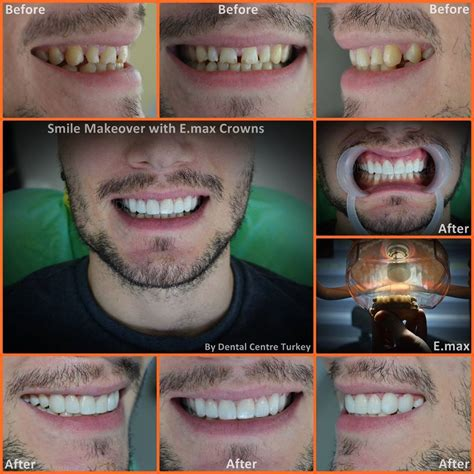 smile makeover dentist  istanbul