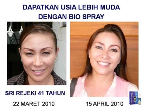 Bionat Spray Obat Luka Diabetes Dan Luka Kronisakut bio spray medan jual biospray murah kandungan biospray tentang biospray bio spray review