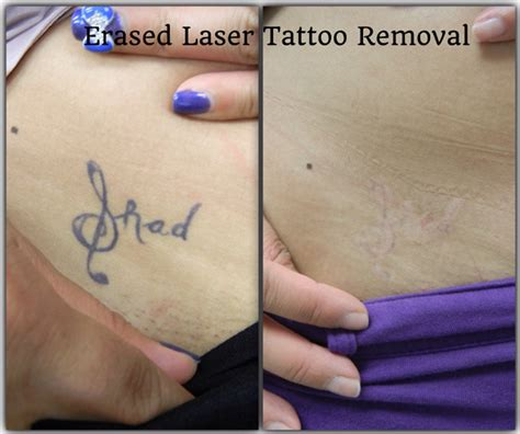 100 considering laser tattoo removal ahb 13 best my