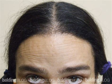 female balding at temples hairstyles balding blog female hair loss archives page 96 of 108