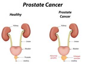 Is Zucchini A Root Vegetable - 14 surprising home remedies for prostate cancer organic