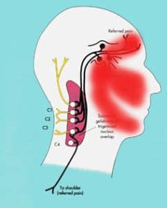 mal di testa sopra l occhio cefalea da le cause e come stare subito bene