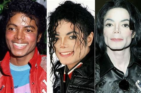 age reducing makeovers michael jackson plastic surgery transformations