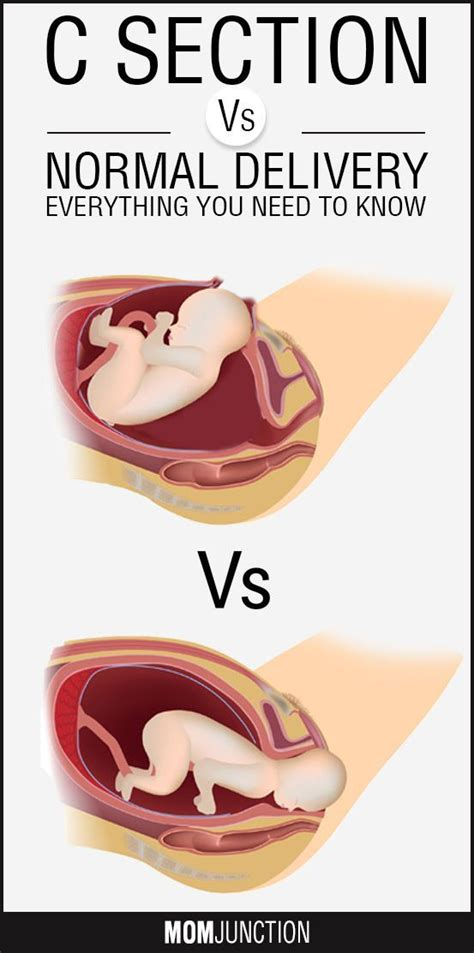 Pros And Cons Of C Section Vs Birth by 2588 Best Pregnancy Care Images On Pregnancy