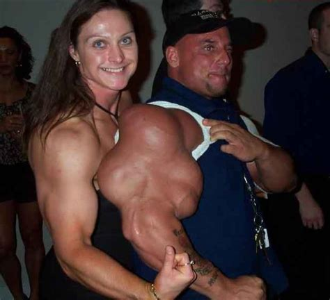 injecting synthol into your muscles can make you instantly