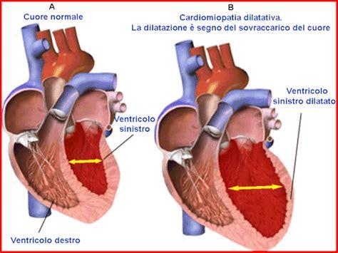 dilatazione vasi sanguigni insufficienza cardiaca o scompenso cardiaco gennarino