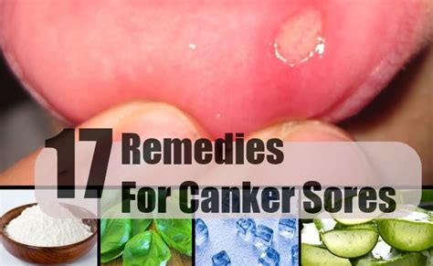 17 home remedies for canker sores treatments