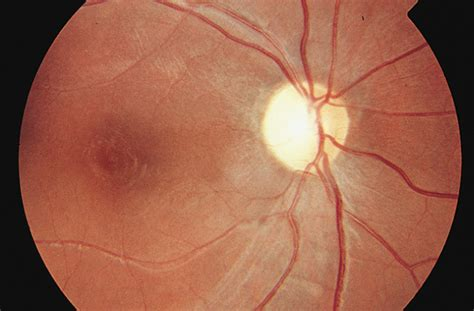 diffuse bilateral subacute neuroretinitis ophthalmology