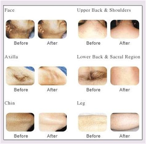 lightsheer diode laser skin before and after pictures using lumenis lightsheer laser lumenis lightsheer laser