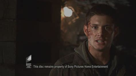 my bloody ackles in my bloody 3d ackles image
