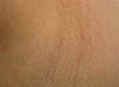 heavy hair on vigina st louis laser hair removal laser hair removal st louis