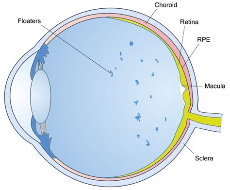 causes of flashing lights in peripheral vision eye floaters pictures pictures photos