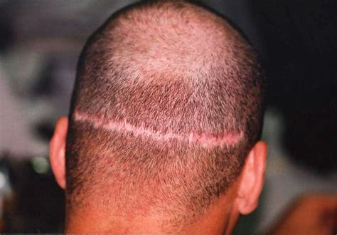 cover scars from hair transplant should you expect hair transplant scars if you want your