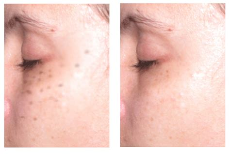 laser tattoo removal freckles how to get rid of freckles my health tips