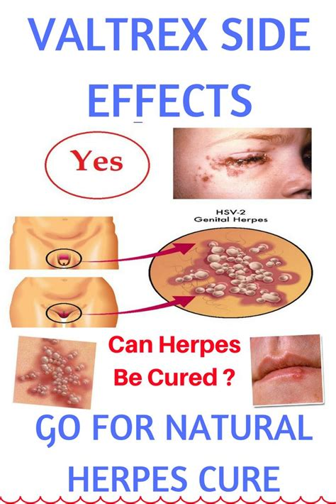 best herpes treatment 4255 best herpes treatments images on herpes