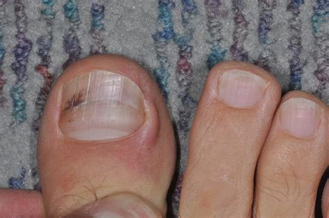 toe cancer acral lentiginous melanoma involving nail images frompo