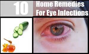 eye infection home remedies 10 home remedies for eye infections treatments
