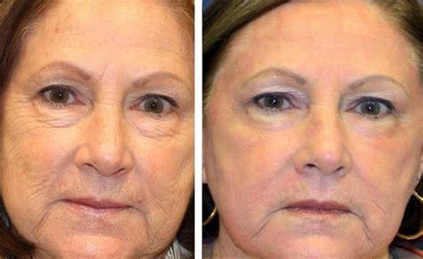 ablative laser resurfacing skin resurfacing laser lumenis laser treatments for age spots lady care health