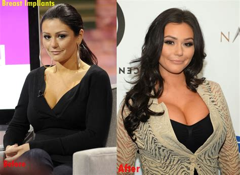 jenni jwoww before and after plastic surgery breast jenni jwoww farley breast implants plastic surgery before