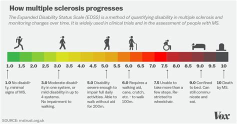 Sclerosis Pictures Diagrams